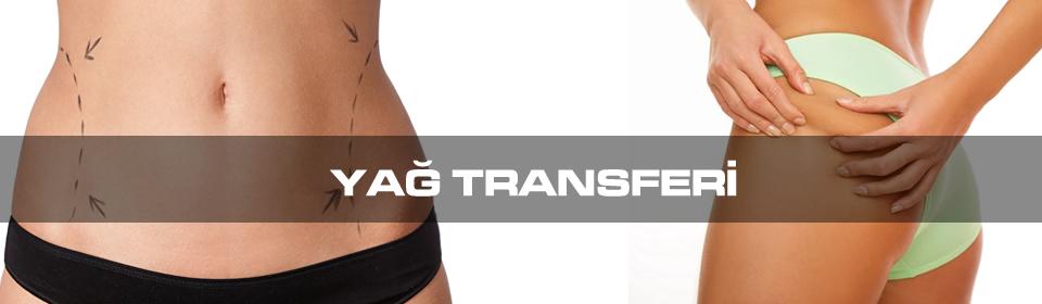 https://www.icebluetasarim.com/wp-content/uploads/2014/12/yag-transferi.jpg